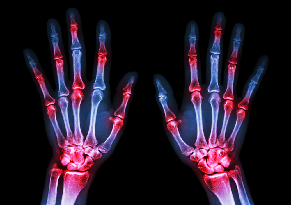 What Does Arthritis Actually Feel Like?